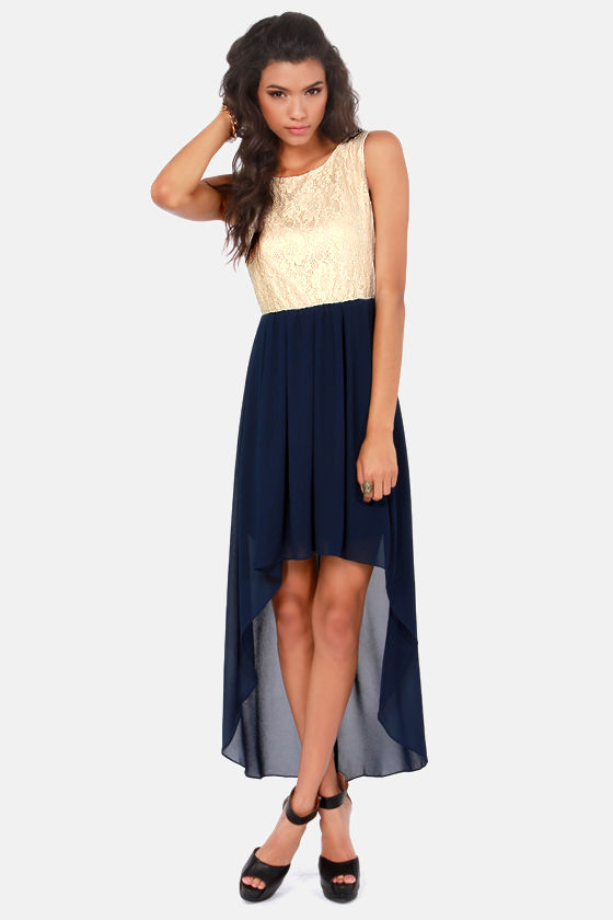 Navy Lace Dress The soft feminine look of a navy lace dress is perfect for both casual and formal events. This slimming flirty design combines lacy edges with practical beauty.